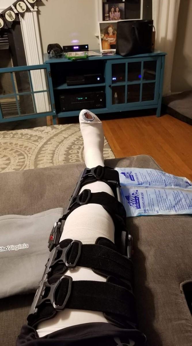 Post Knee Surgery 5.jpg