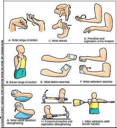 tennis-elbow-graphic-pic.jpg.8fead5141fbc3ca5bfe5e5a28e7068db.jpg